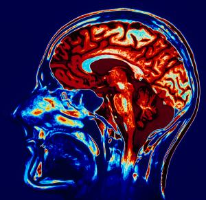 coloured-mri-scan-of-brain-in-sagittal-se-geoff-tompkinson